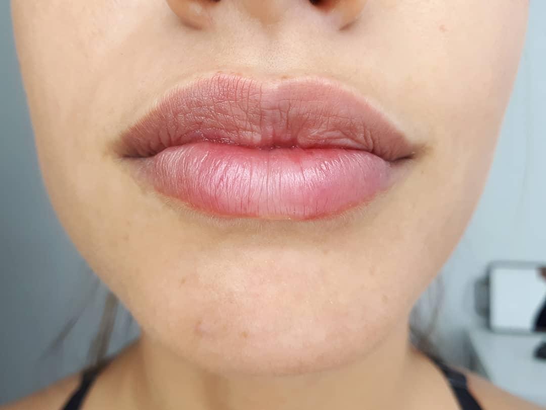 УДАЛЕНИЕ ШРАМА:  наполнитель для губ делают чудеса